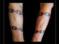 armband schakels onderarm